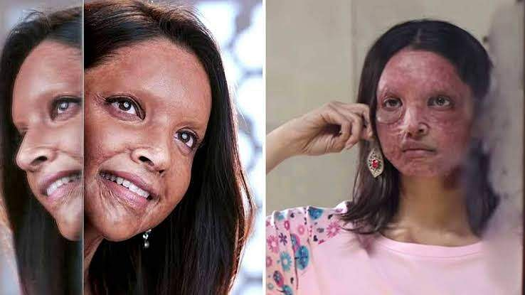 Deepika Padukone's Chhapaak in trouble as writer moves court seeking credit for story