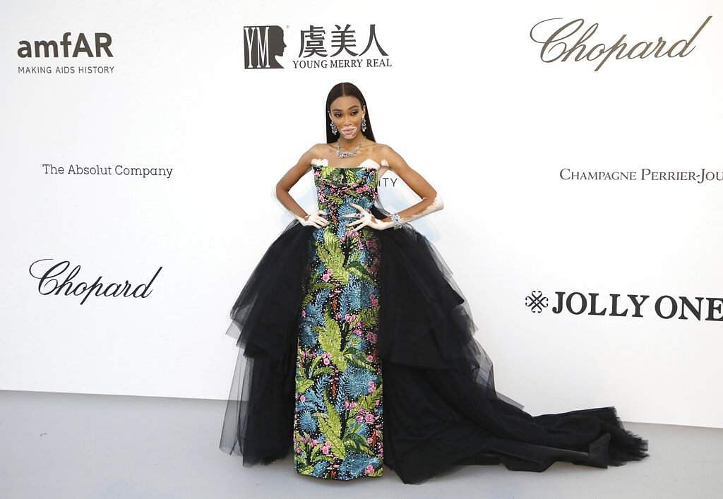 Model Winnie Harlow poses at the amfAR, Cinema Against AIDS, benefit at Hotel du Cap-Eden-Roc, at the 72nd international Cannes film festival, in Cap d'Antibes. (Photo by Vianney Le Caer/Invision/AP)