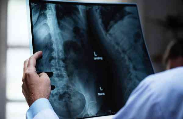 representative image of spine injuries