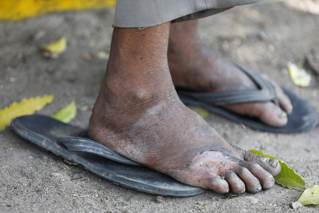 Prayagraj: An injured foot of a daily wage labourer, as he rests on way to his village, following the nationwide lockdown. (AP Photo/Rajesh Kumar Singh)