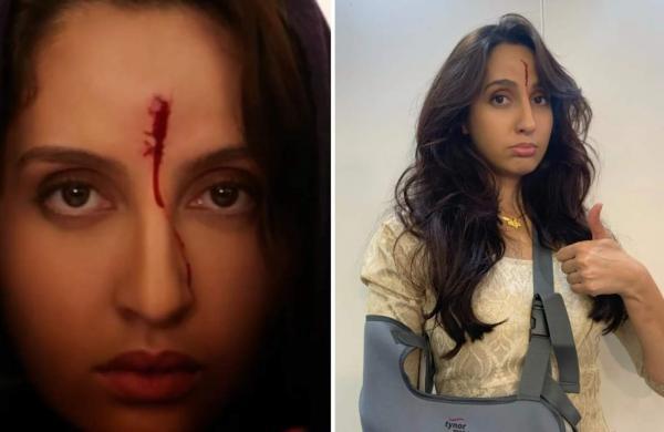 Nora Fatehi Real Injury In Shoot
